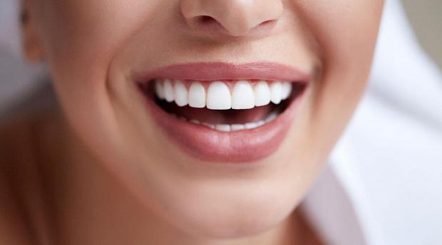 Виниры – быстрый путь к красивой улыбке
